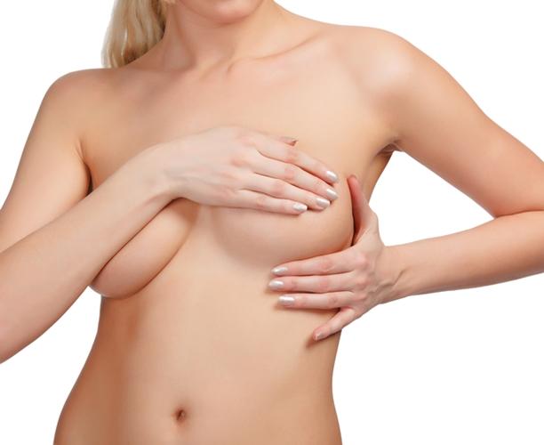 Prótesis secundarias de mama