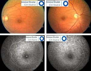 Lesión fótica en ambos ojos después de mirar a un eclipse solar