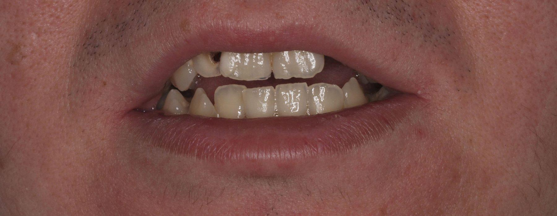 Complex dental cases