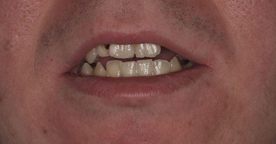 Casos dentales complejos