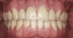 Tratamiento integral de encías ortodoncia, blanqueamiento, carillas ,implantes y escultura dental