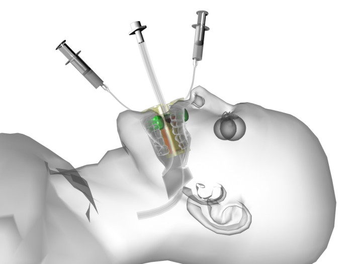 Clip-FAB: new intubation device