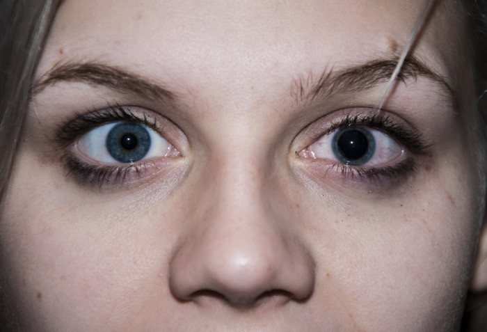 Eye drops, are they necessary to dilate the pupil?