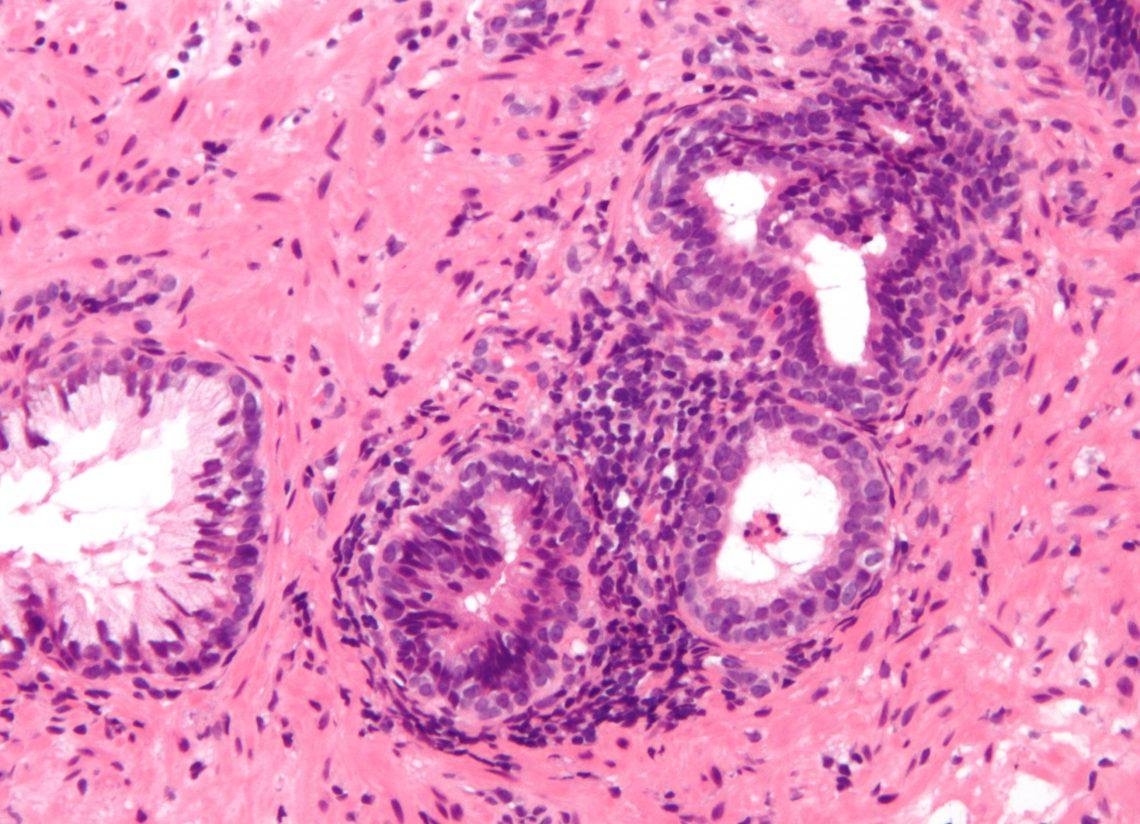 Síntomas del cáncer de próstata y su detección precoz