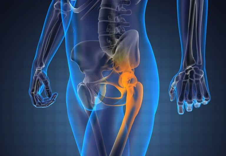 Osteoarthritis of the hip or Coxarthrosis