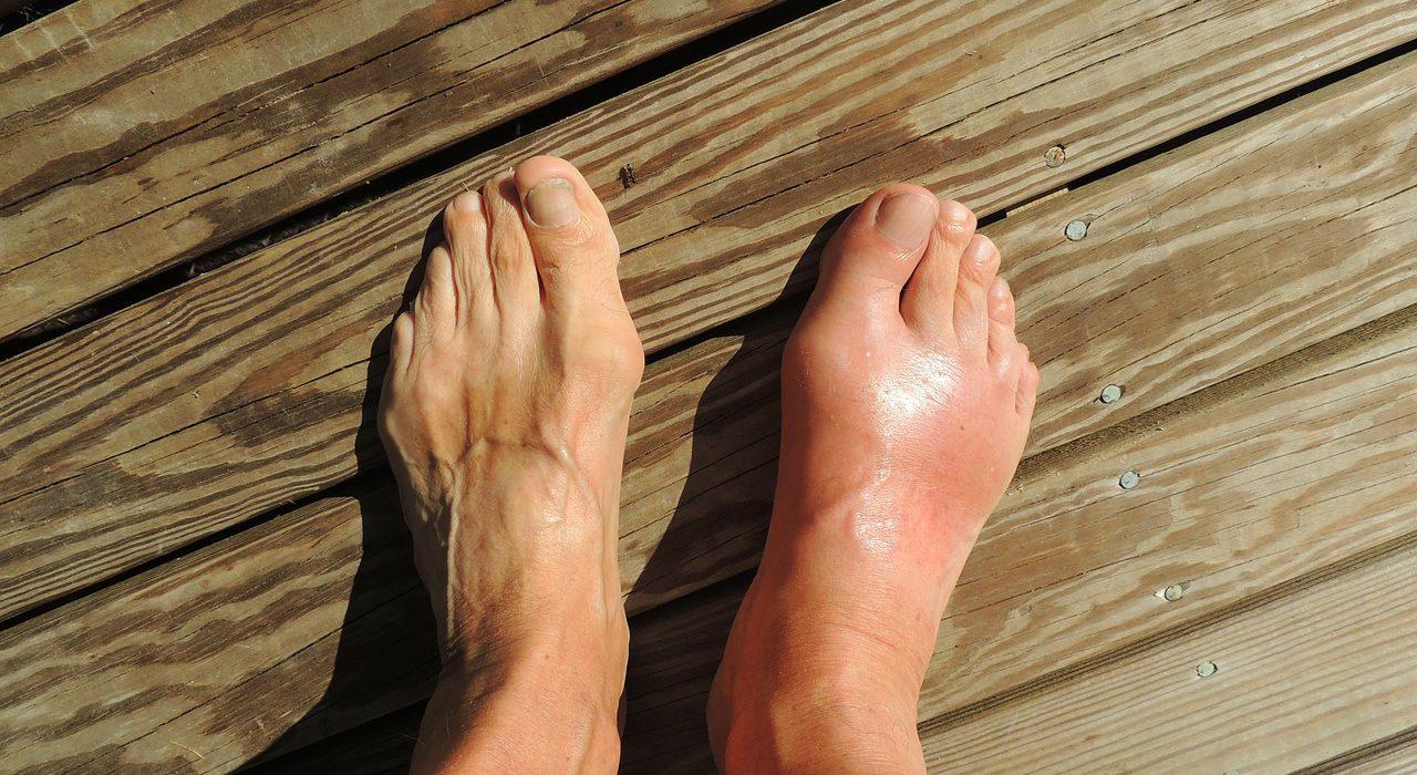 10 remedios caseros para aliviar la hinchazón de pies y tobillos