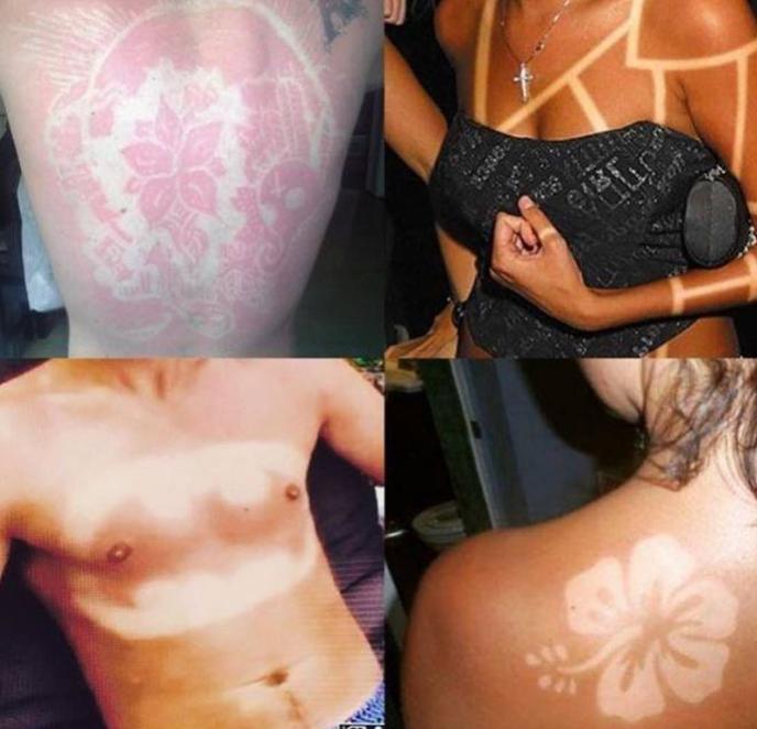 Sunburn Art: ¿Quemarse? Sí, pero con arte