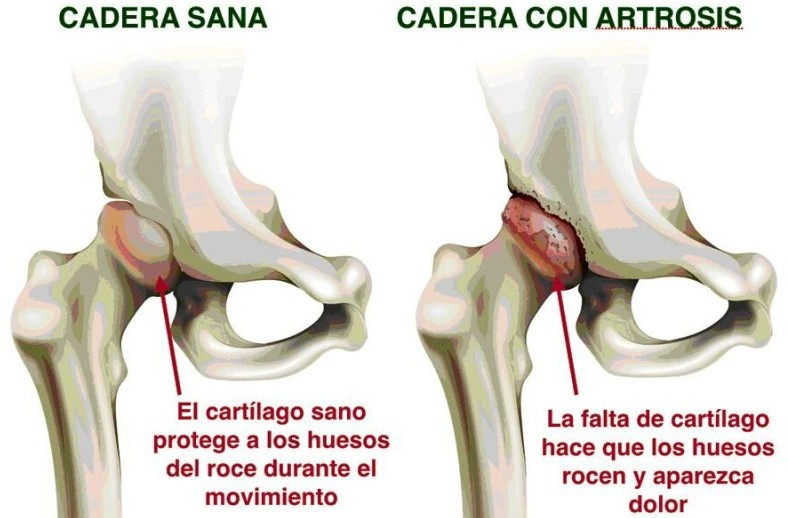 "Hip Prosthesis: ""Indications and contraindications"""