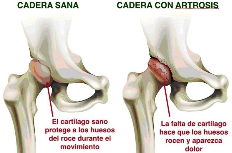 Prótesis de Cadera: «Contraindicaciones e Indicaciones»