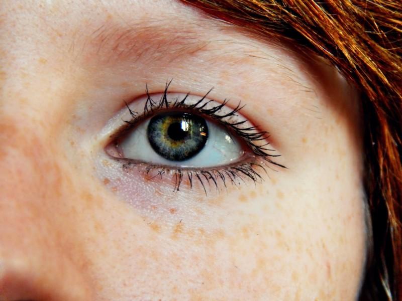 """Día Mundial de la Visión: """"Una persona se queda ciega cada 5 segundos"""""""
