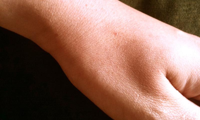 Cómo prevenir y detectar el cáncer de piel sin moverse de casa