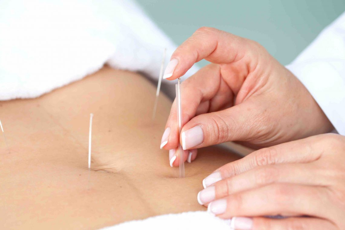 Acupuncture treatment for infertility