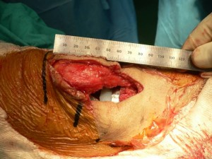 Incision of 8 cm. surgery of total knee prosthesis