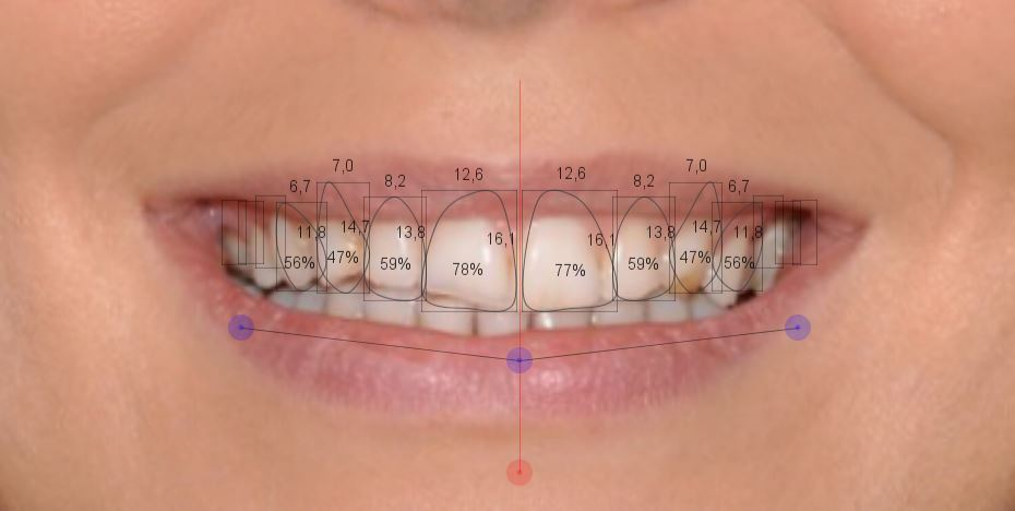 Clínica Perio&Implant: Diseñando sonrisas