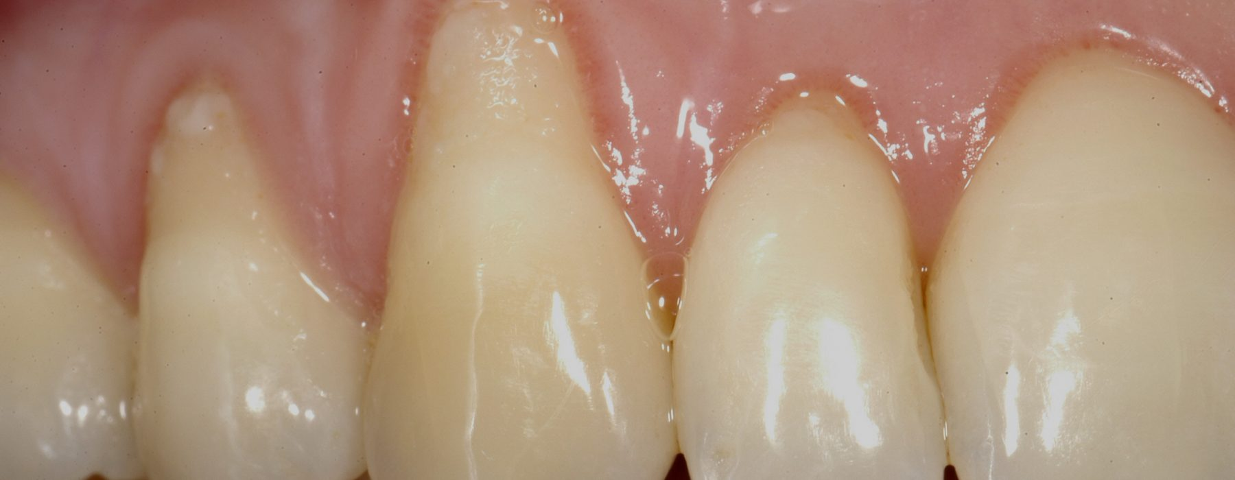 Gingival recessions: An aesthetic problem with solution
