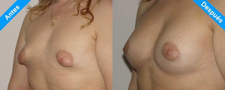 mamas tuberosas antes y despues