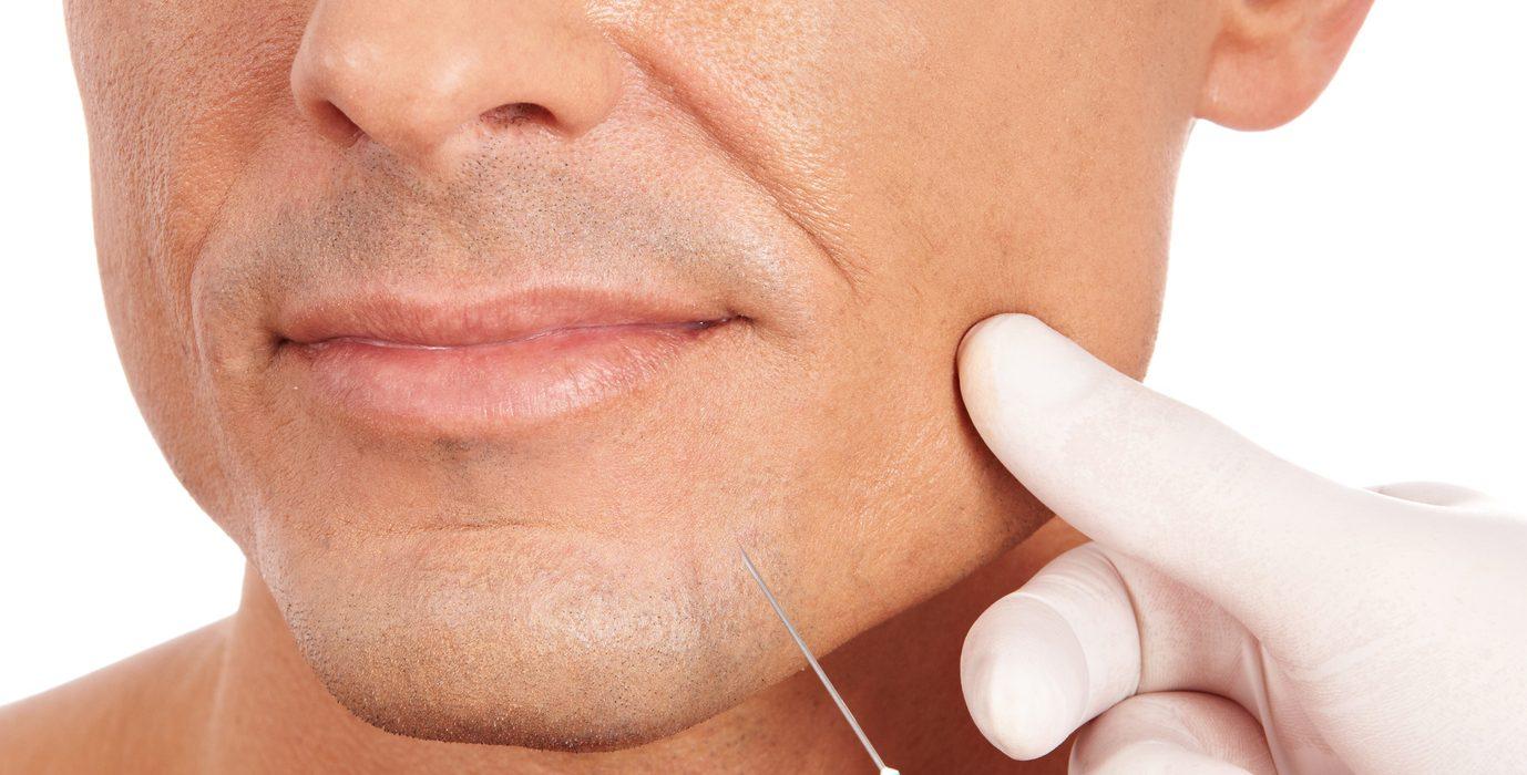"""Dr. Andrés Nemseff: """"Los hombres buscan tener una imagen facial más relajada y fresca"""""""