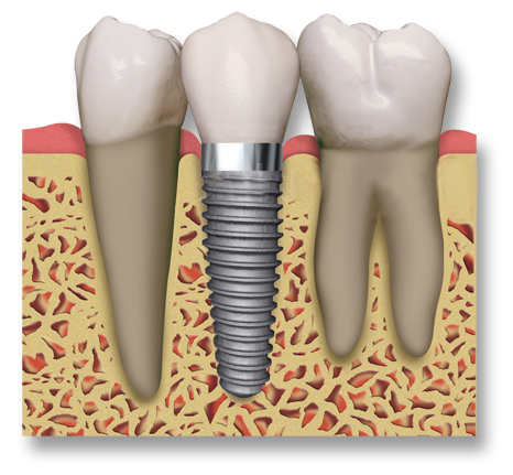 Dental Implants to be cared jusst like natural teeth