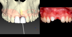 Dientes e Implantes en una sesión