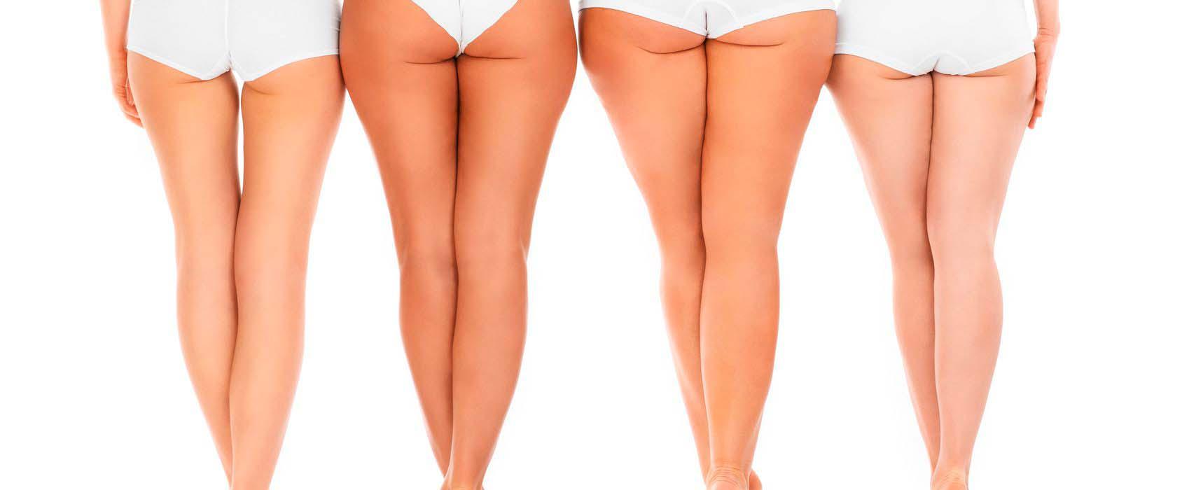 La liposucción y el drenaje linfático (LPG)