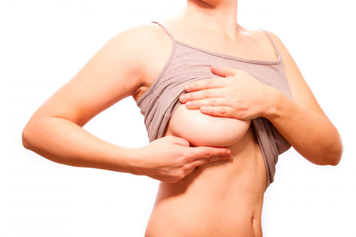 Capsular mammary contracture: what it is and how to avoid it