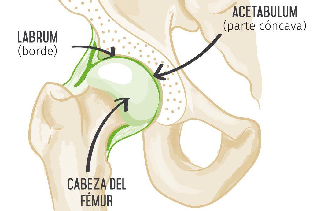 Lesiones del labrum en la cadera