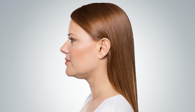 Belkyra o liposucción de la papada sin cirugía