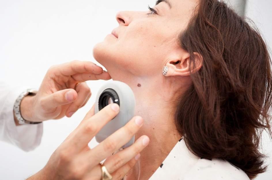 Proteger la piel tras el verano