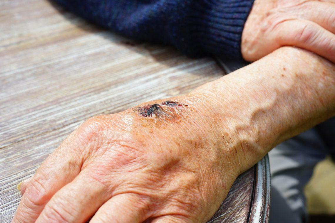 Queratosis seborreica: síntomas y tratamientos