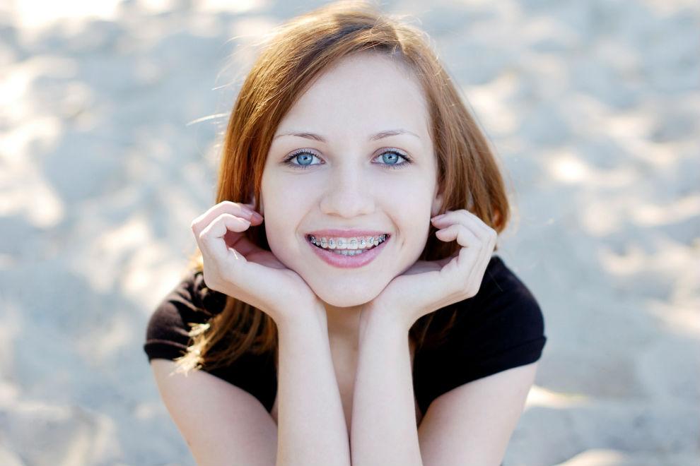 Ventajas de la ortodoncia Damon