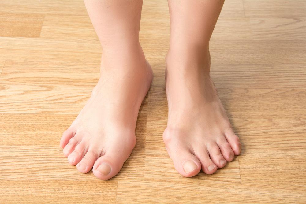 Cirugía percutánea del pie para juanetes y dedos en garra
