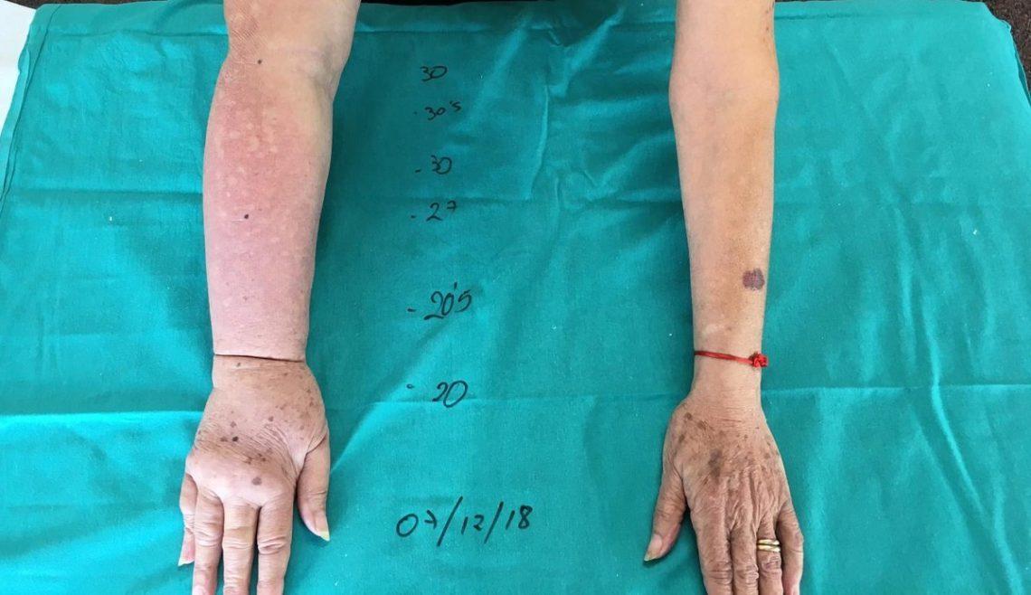 Corrección quirúrgica del linfedema