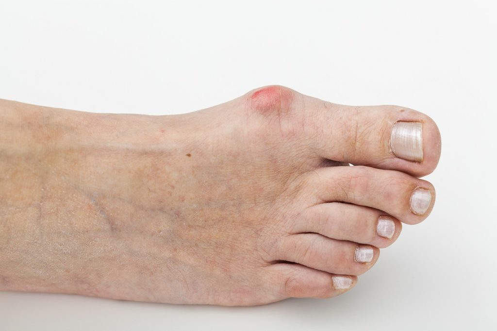 Minimally invasive surgery for bunions and claw toes