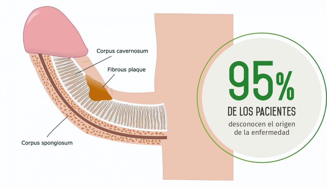 Nuevos tratamientos en la enfermedad de peyronie (pene doblado)