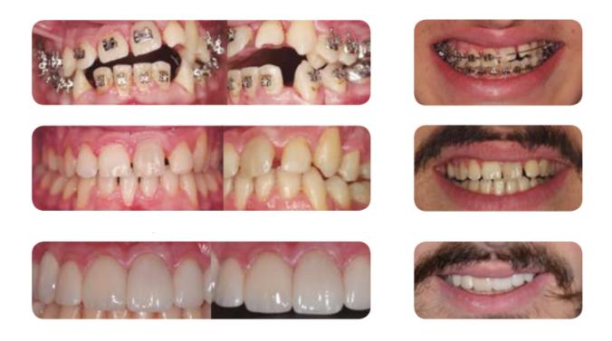 Perio&Implant: expertos en casos dentales complejos