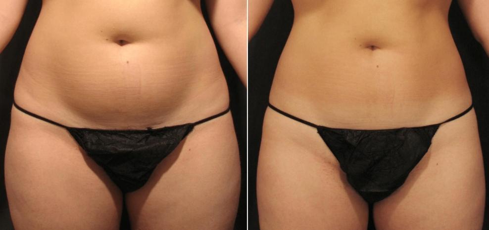 Velashape II: Tratamiento de remodelación corporal y celulitis