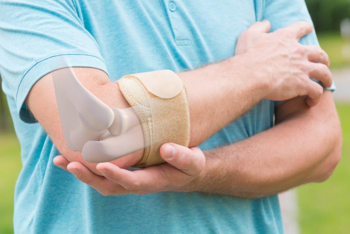 Epicondilitis o codo de tenista: cirugía artroscópica