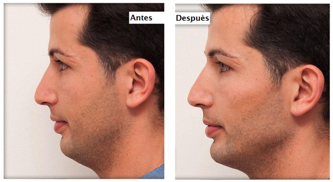 Remodelación facial 3D sin cirugía