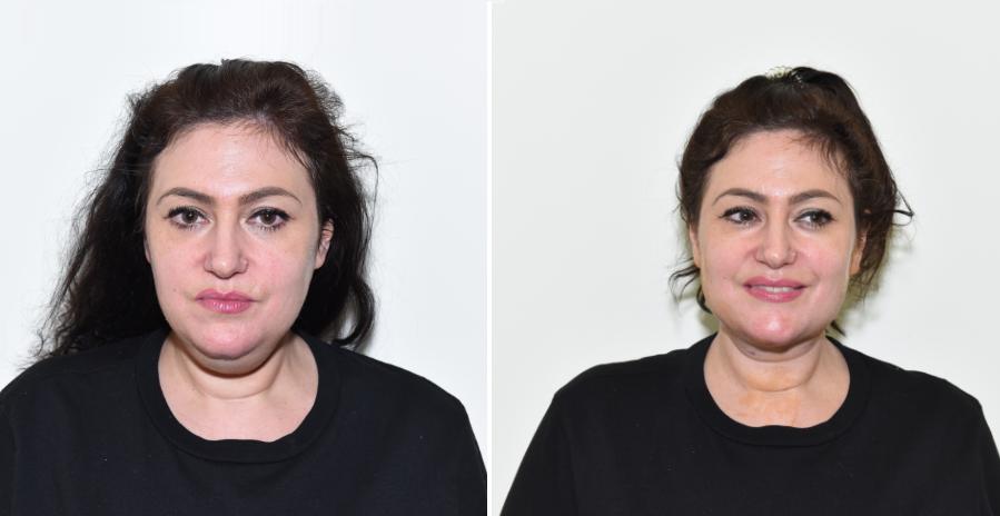 Rejuvenecimiento facial con técnicas combinadas de medicina y cirugía