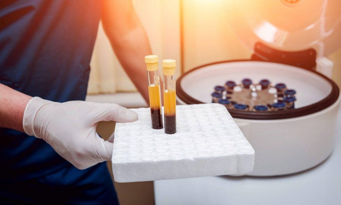 Plasma Rico en Plaquetas (PRP): Técnica joven, pero pilar básico en medicina