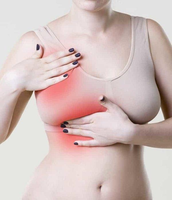 Cáncer de mama síntomas, prevención y tratamientos